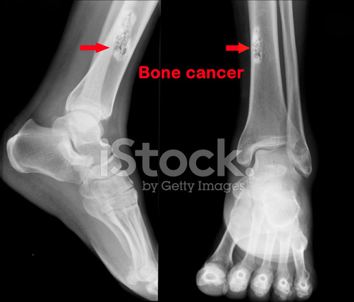 Stock photos freeimages com. Cancer clipart bone