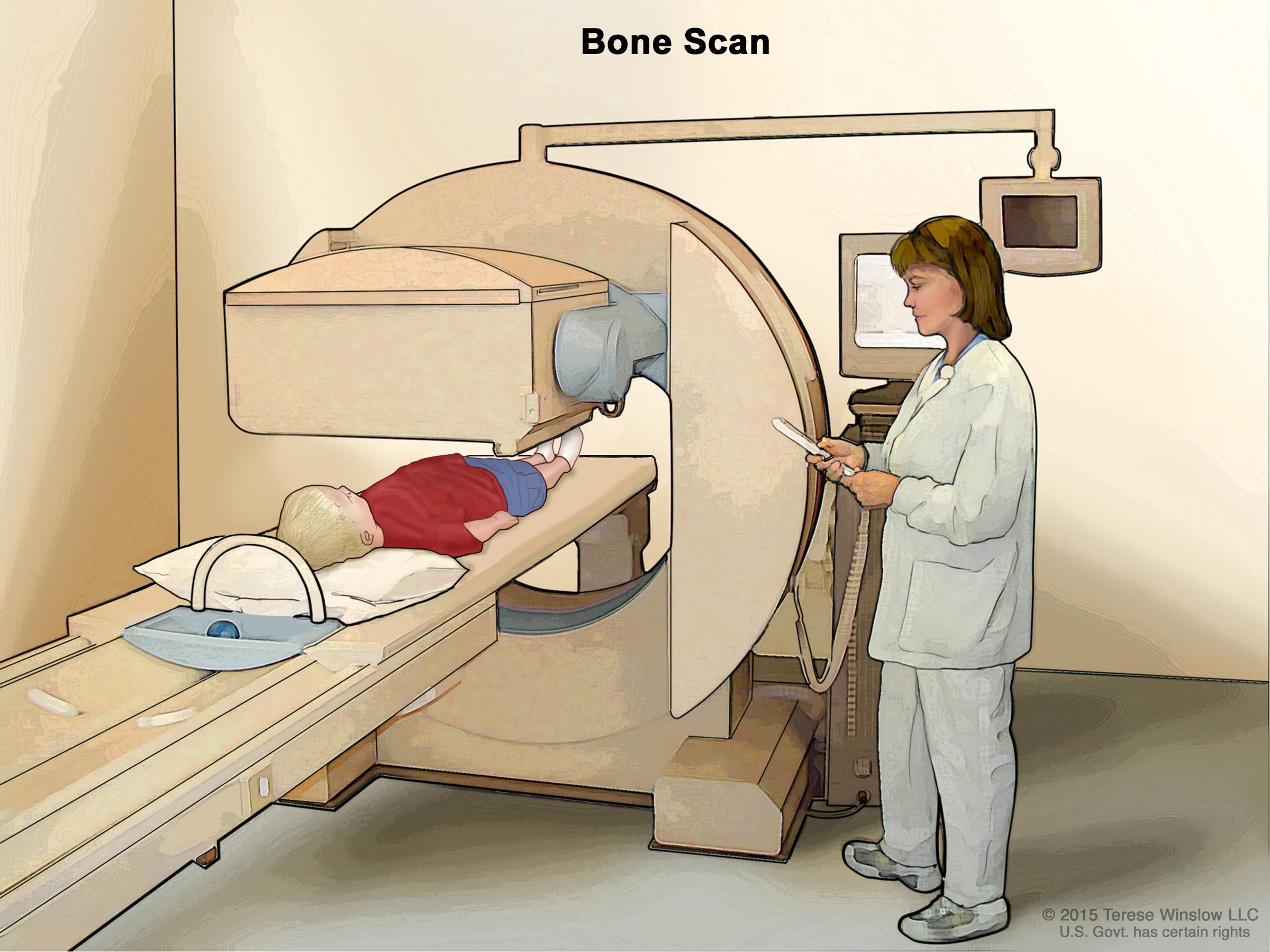 Ewing sarcoma treatment pdq. Cancer clipart bone