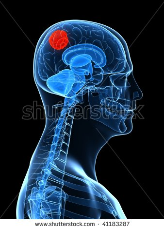 Brain Cancer Clipart