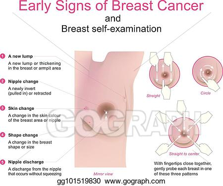 Cancer clipart cancer symptom. Vector early signs of
