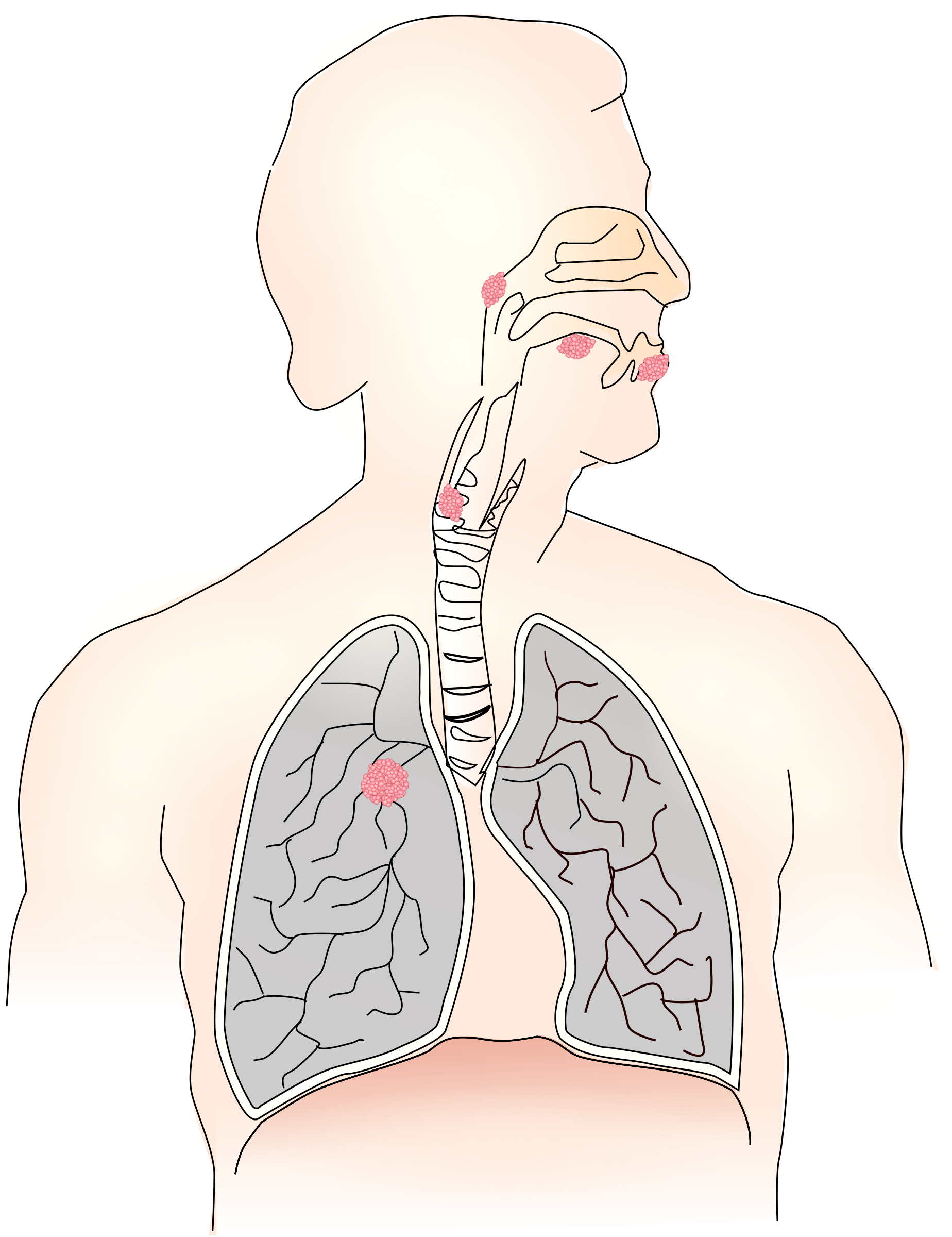 Lungs clipart lung smoker. Cancer caused by smoking