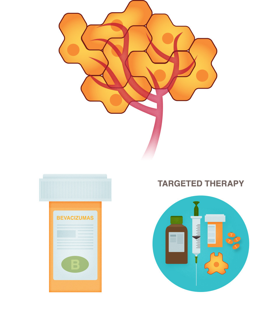 Targeted therapy national breast. Cancer clipart chemotherapy