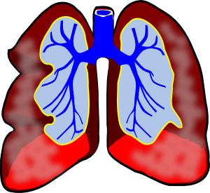 Mesothelioma Clip Art at Clker