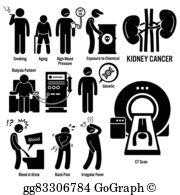 Vector stock symptoms illustration. Cancer clipart liver transplant