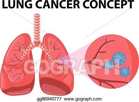 Vector art diagram of. Cancer clipart lung cancer