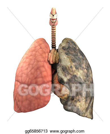 Cancer clipart respiratory disease. Drawing lung before and