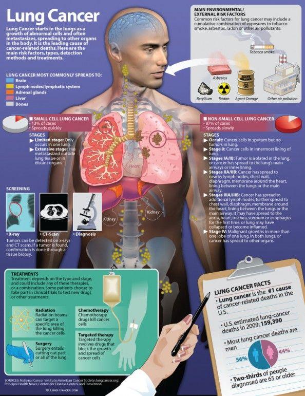 Cancer clipart respiratory disease.  best lung awareness