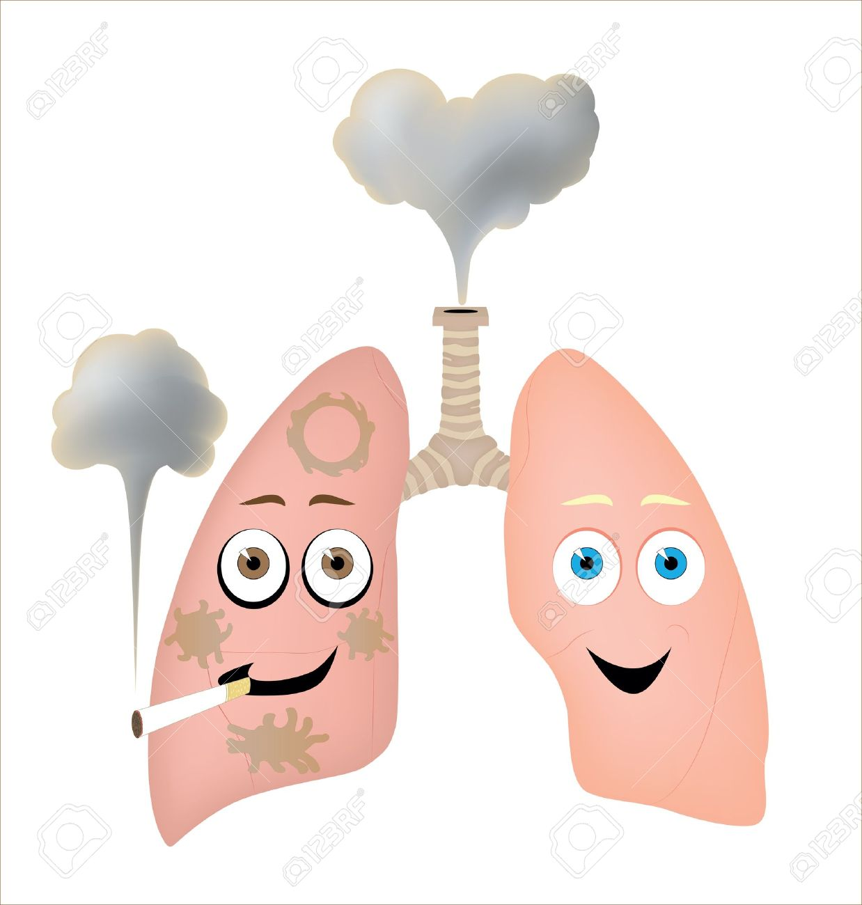 cancer clipart respiratory disease #38723378
