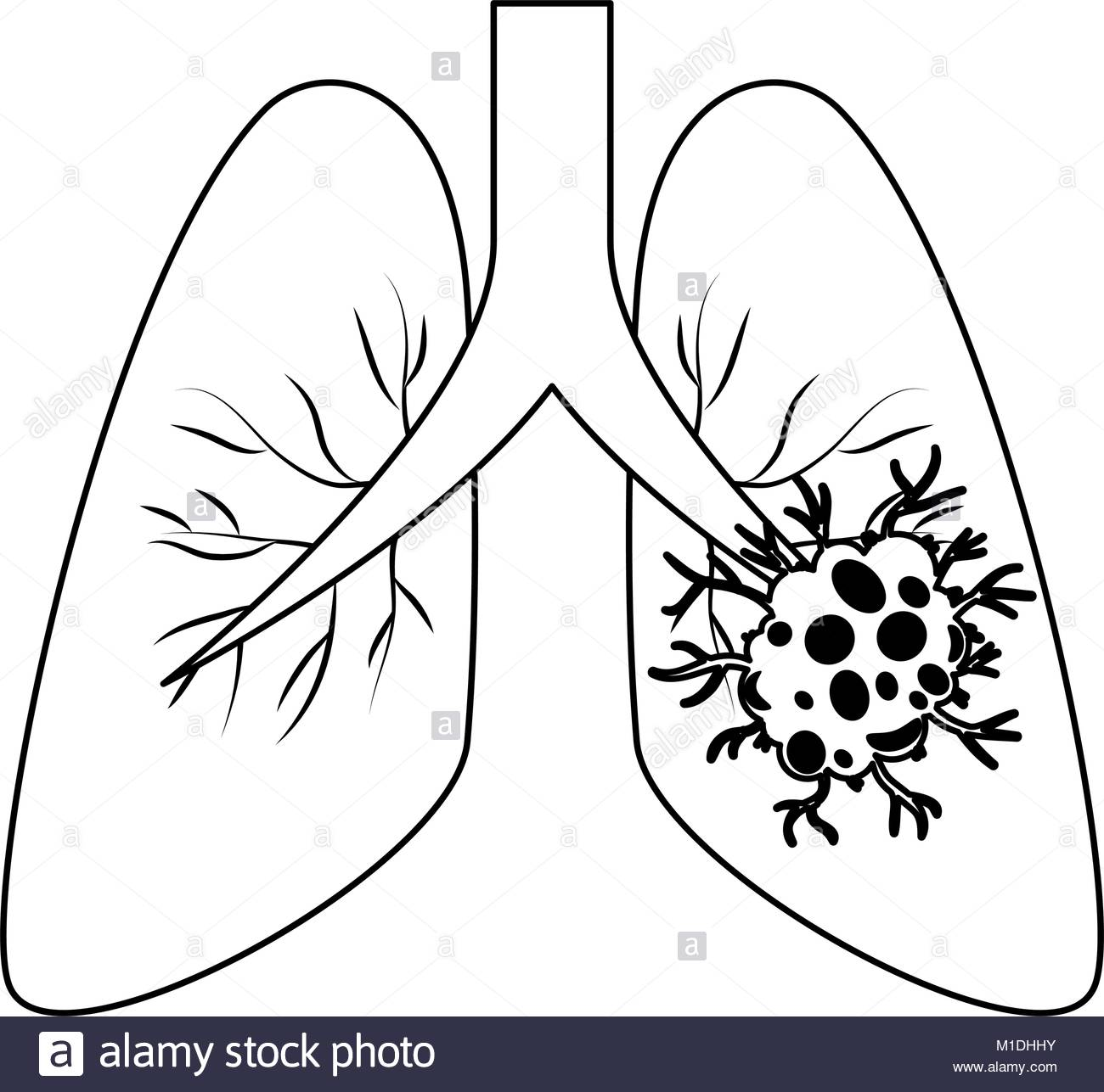 Cancer clipart sketch. Lung drawing at getdrawings