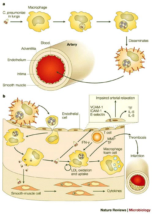 Cell clipart chlamydia. Pneumoniae cause arteriosclerosis