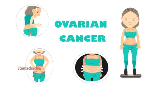 Cell clipart ovary. Ovarian cancer what every