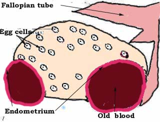 Ovarian cysts female health. Cell clipart ovary