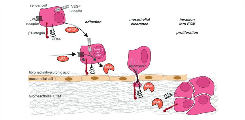 Cells clipart ovary. Ovarian cancer cell adhesion