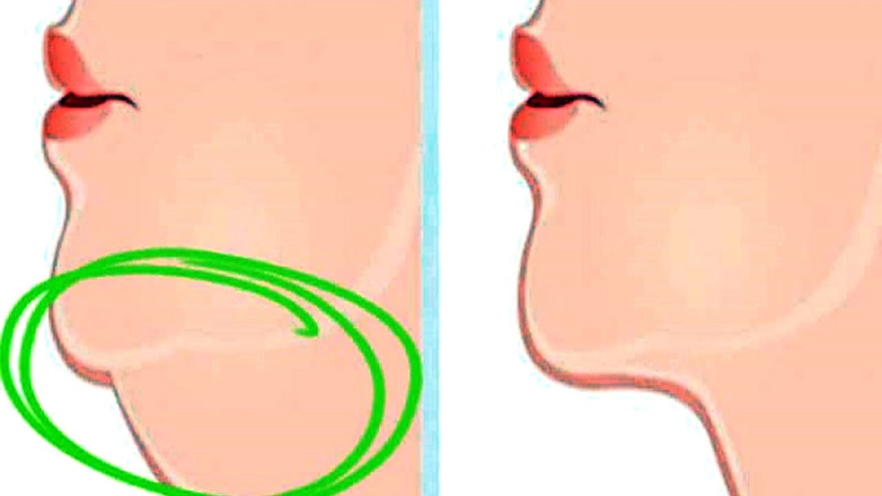 How to get rid. Chin clipart double chin