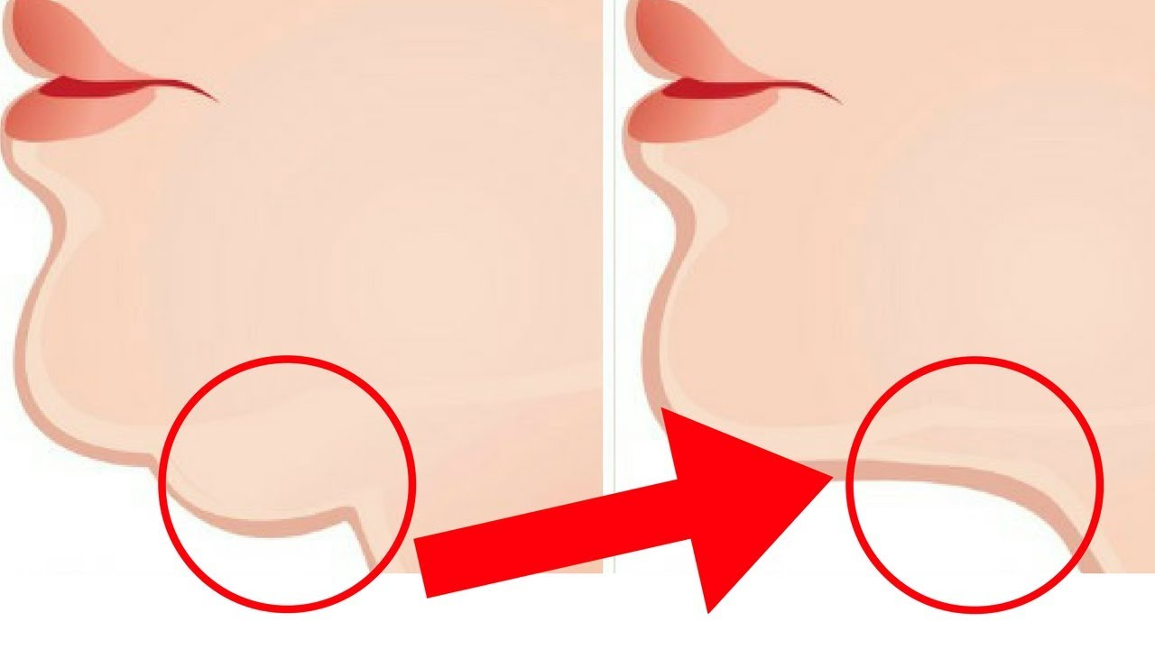 Chin clipart double chin. Exercises to get a