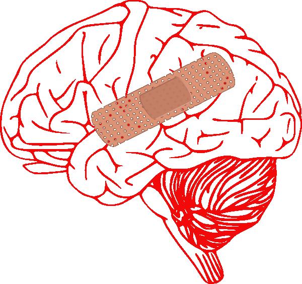 Clipart brain cartoon. Injury clip art at
