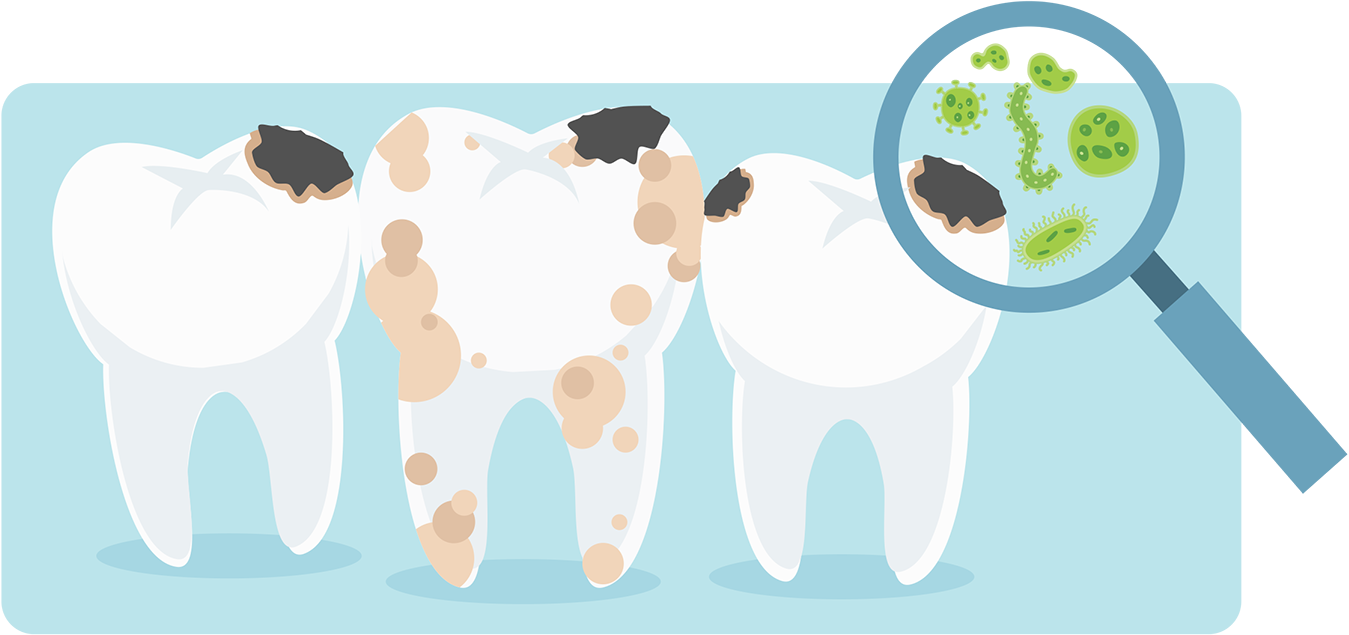 Clipart cow tooth. Guide to cavities taylor