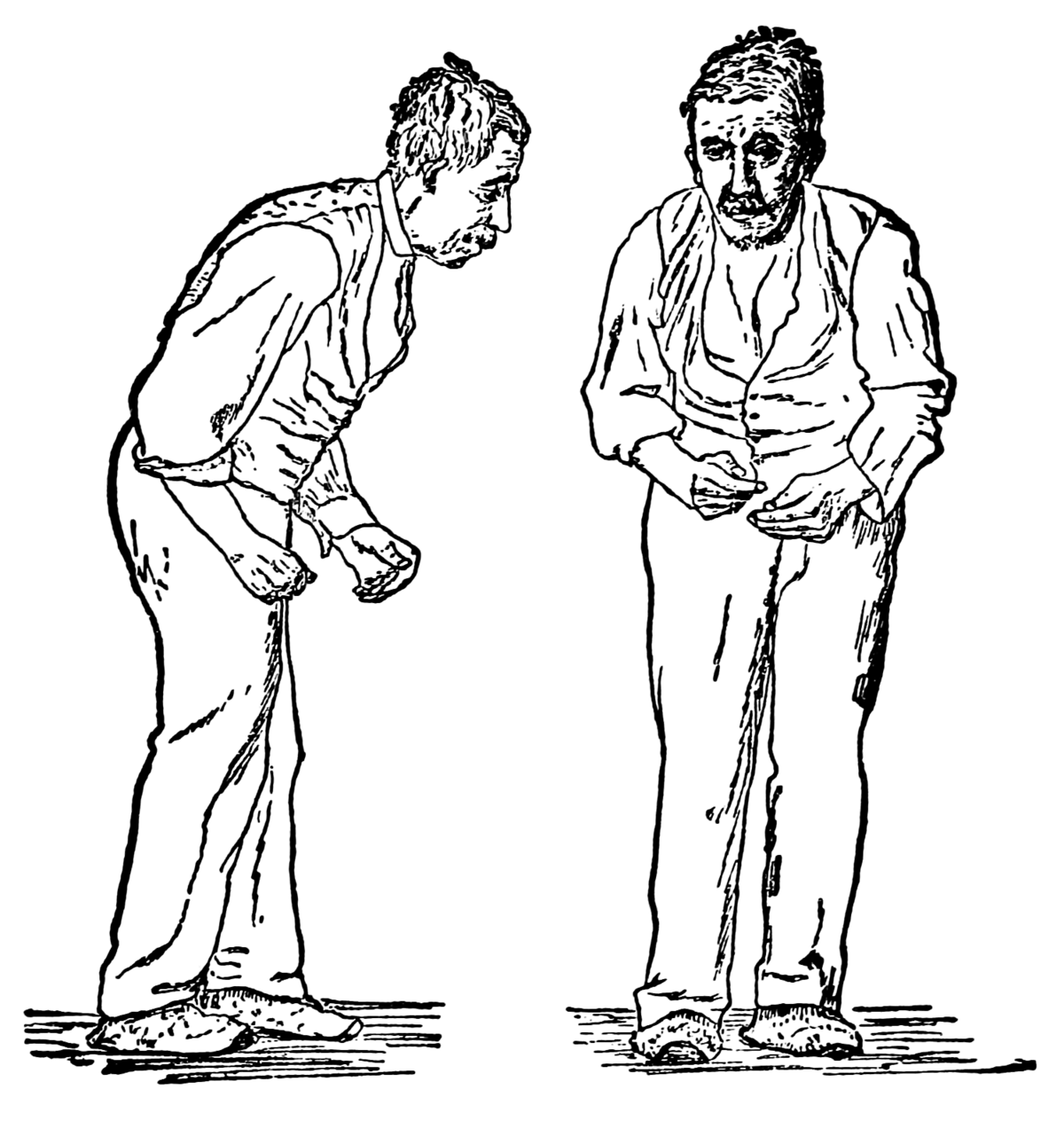 Clipart definition causes. Parkinson s disease wikipedia