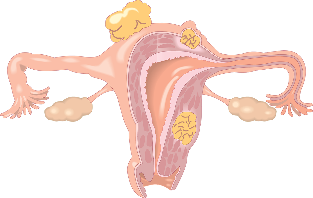Premature ovarian failure pof. Ears clipart anatomy