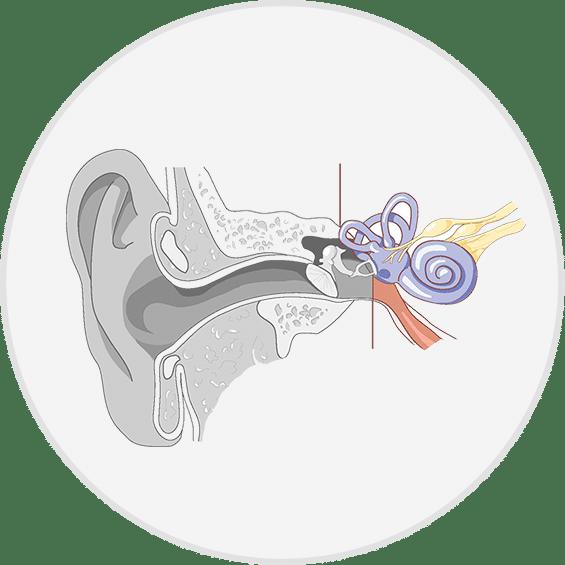 Ears clipart hearing loss. Modern and choice sensorineural