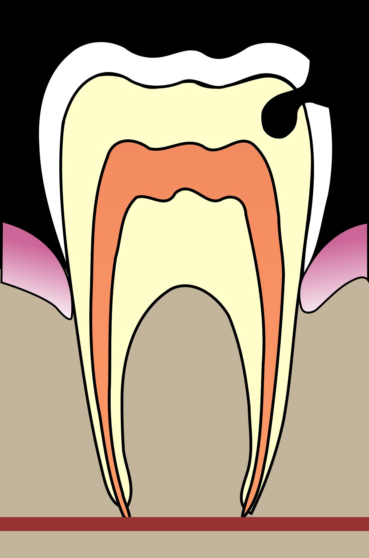 Hammass rky wikipedia . Clipart ear hygiene