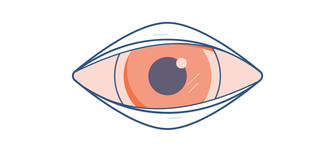 Clipart eyes orange. Conjunctivits treatment and symptoms