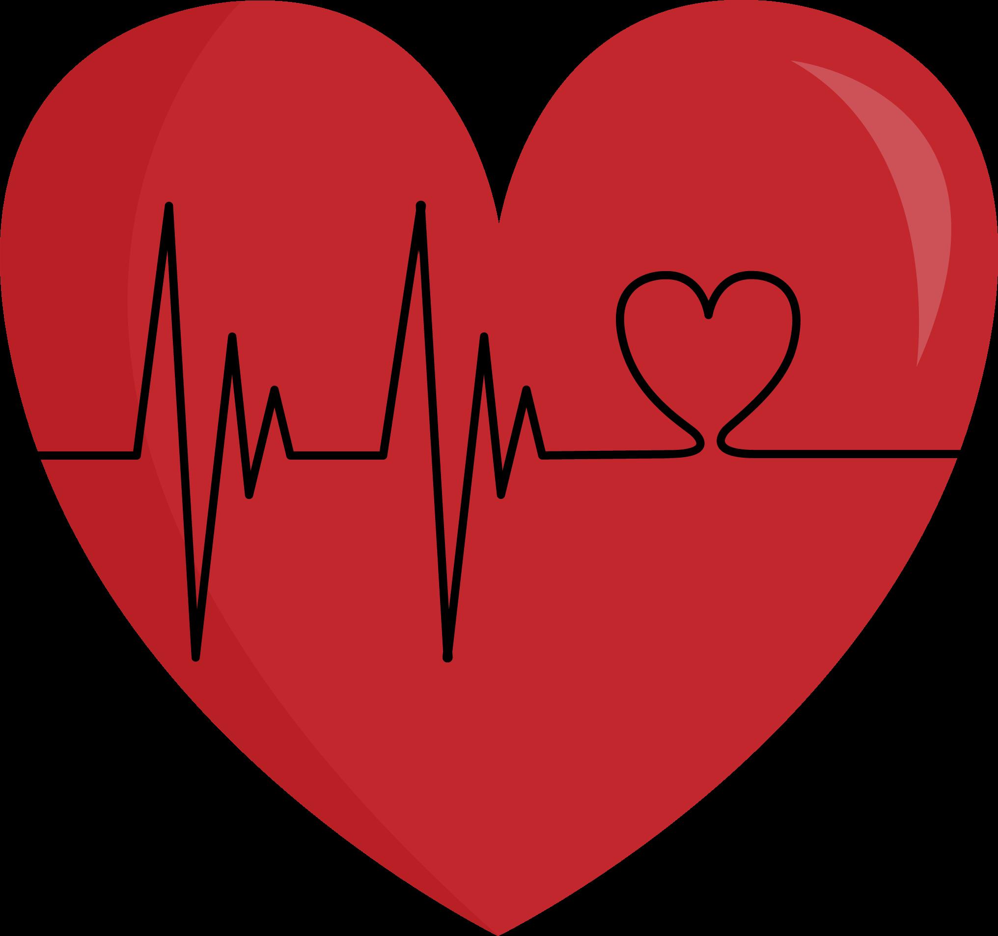 Heartbeat clipart bradycardia.  collection of heart