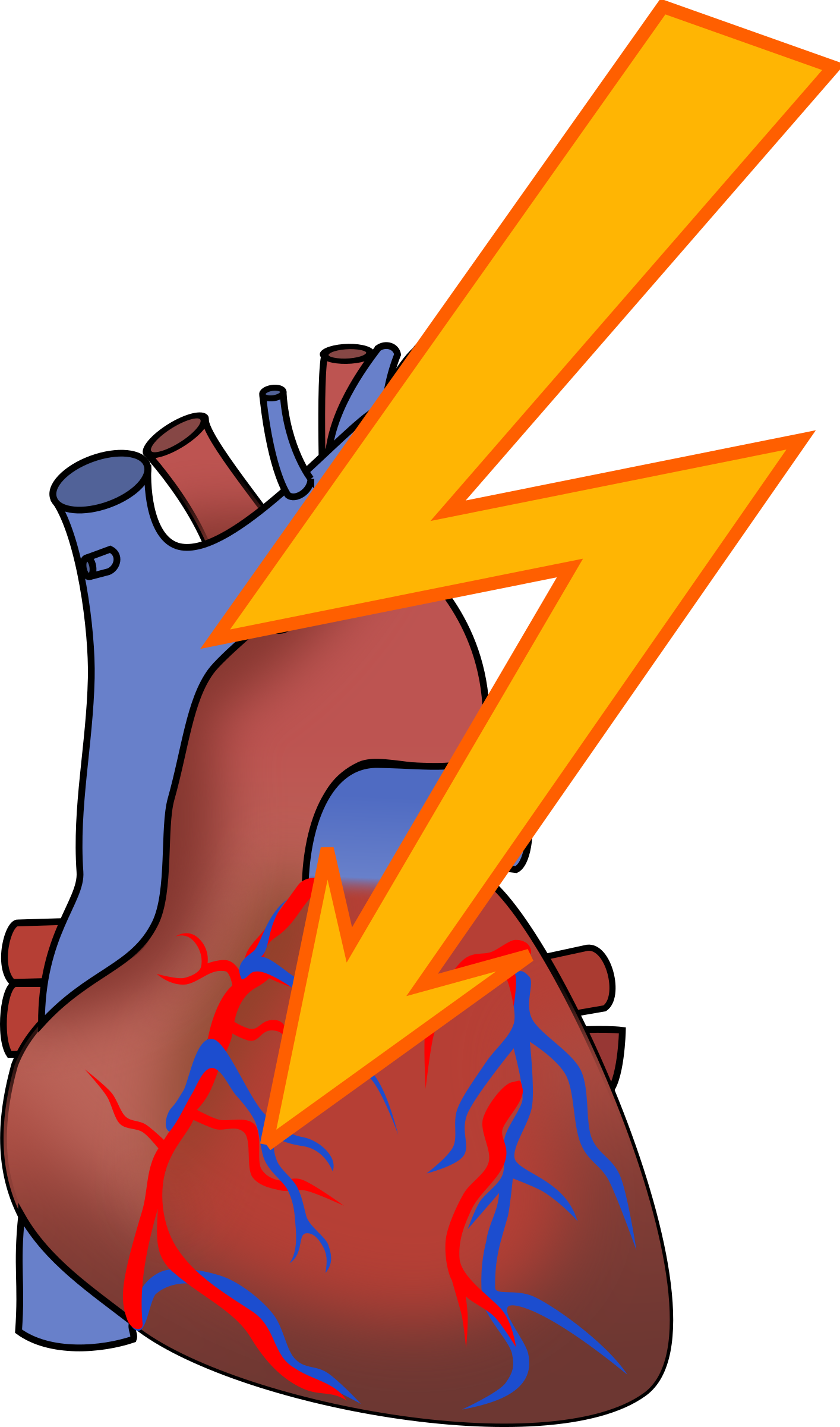Attack big image png. Exercising clipart heart