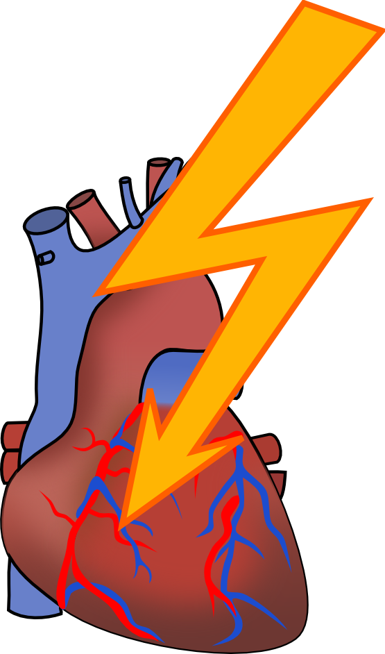 Heart attack free collection. Disease clipart palpitation