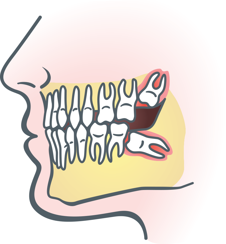 Hurt clipart tootache. Wisdom teeth in teenagers