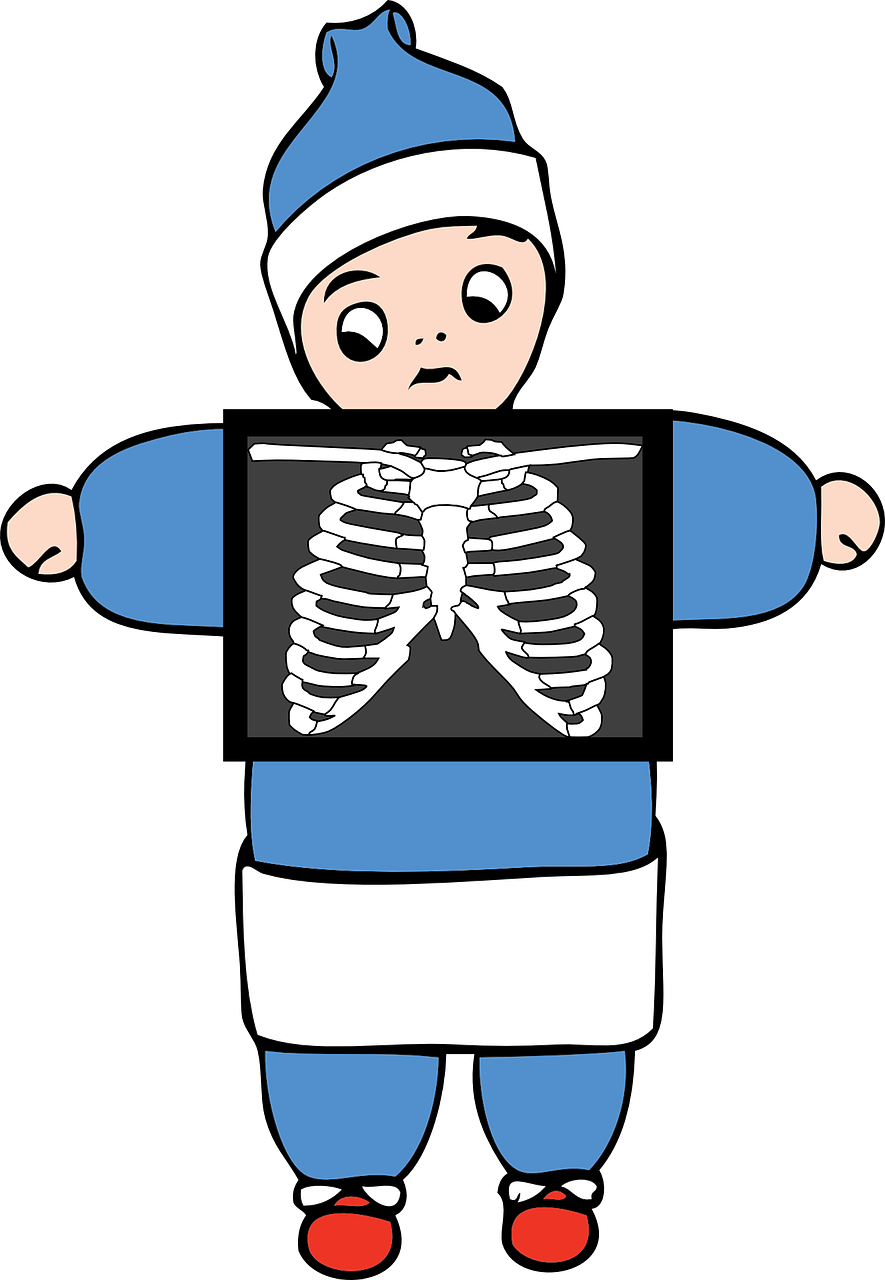 What is a modified. Xray clipart xray broken bone