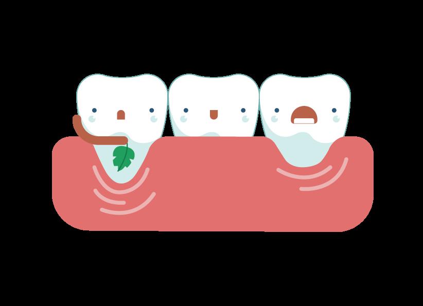 gum clipart tooth gum