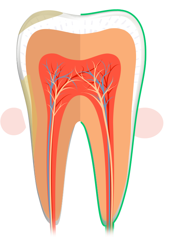 Clipart mouth unhealthy tooth, Clipart mouth unhealthy tooth
