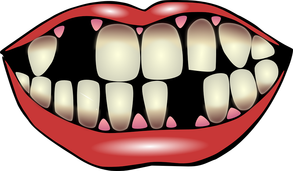 mouth clipart unhealthy tooth