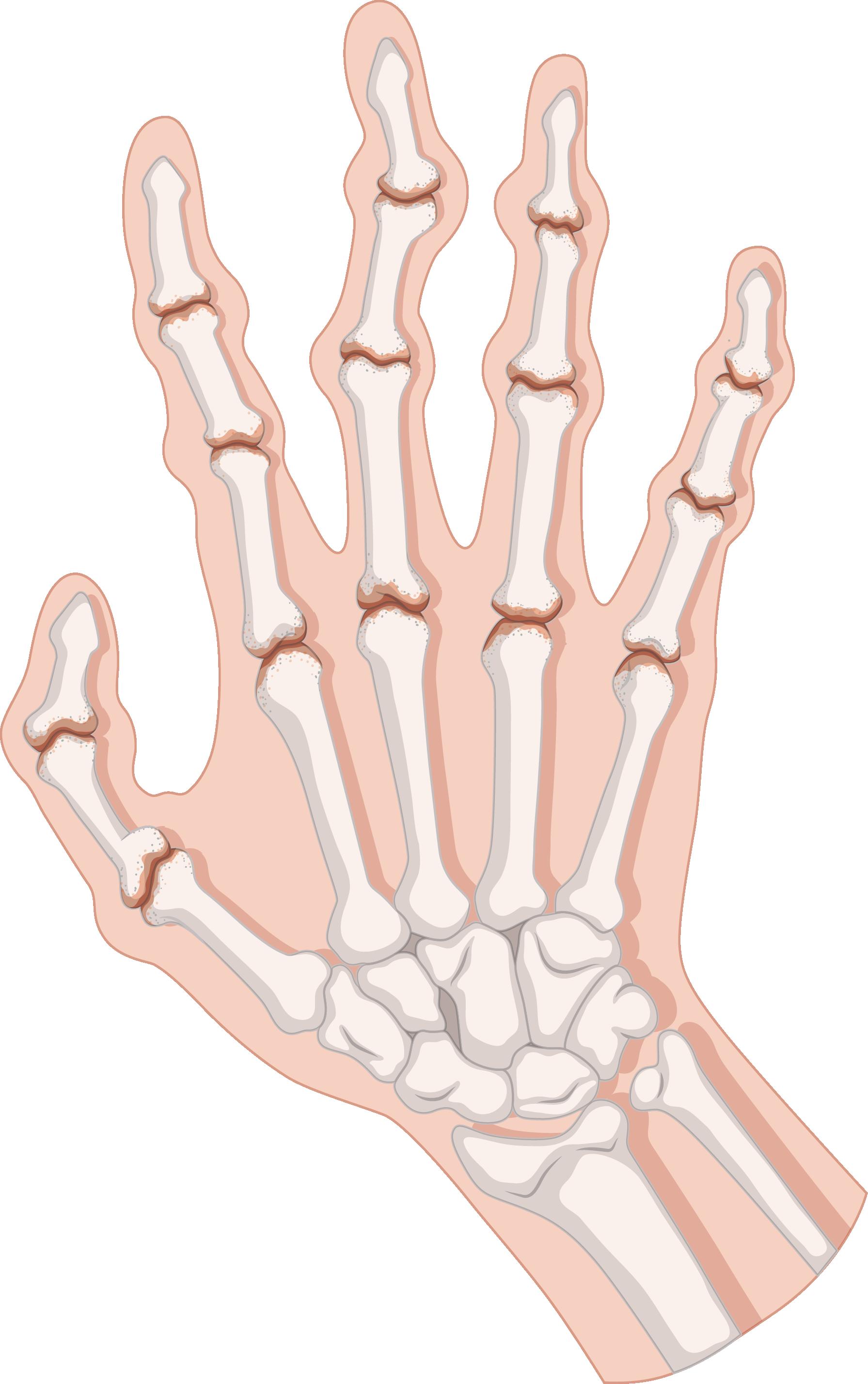 Skeleton clipart body part. Rheumatoid arthritis clip art