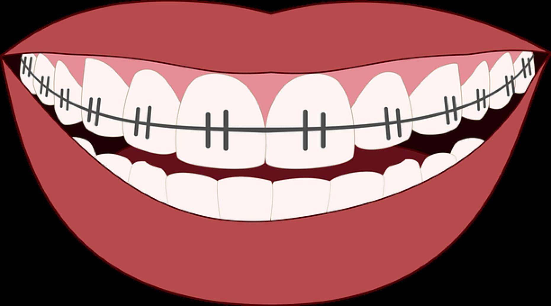 Should you use dental. Clipart smile brace