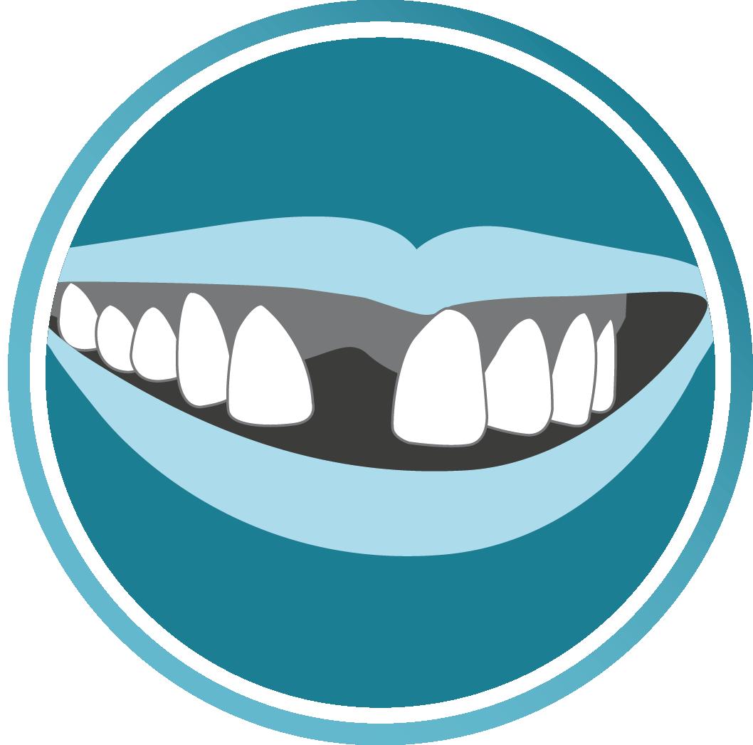Clipart smile brace. Dental implants icondental