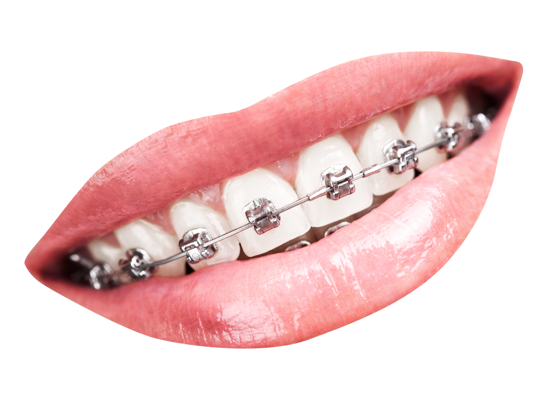 Clipart smile brace. Teeth with braces png