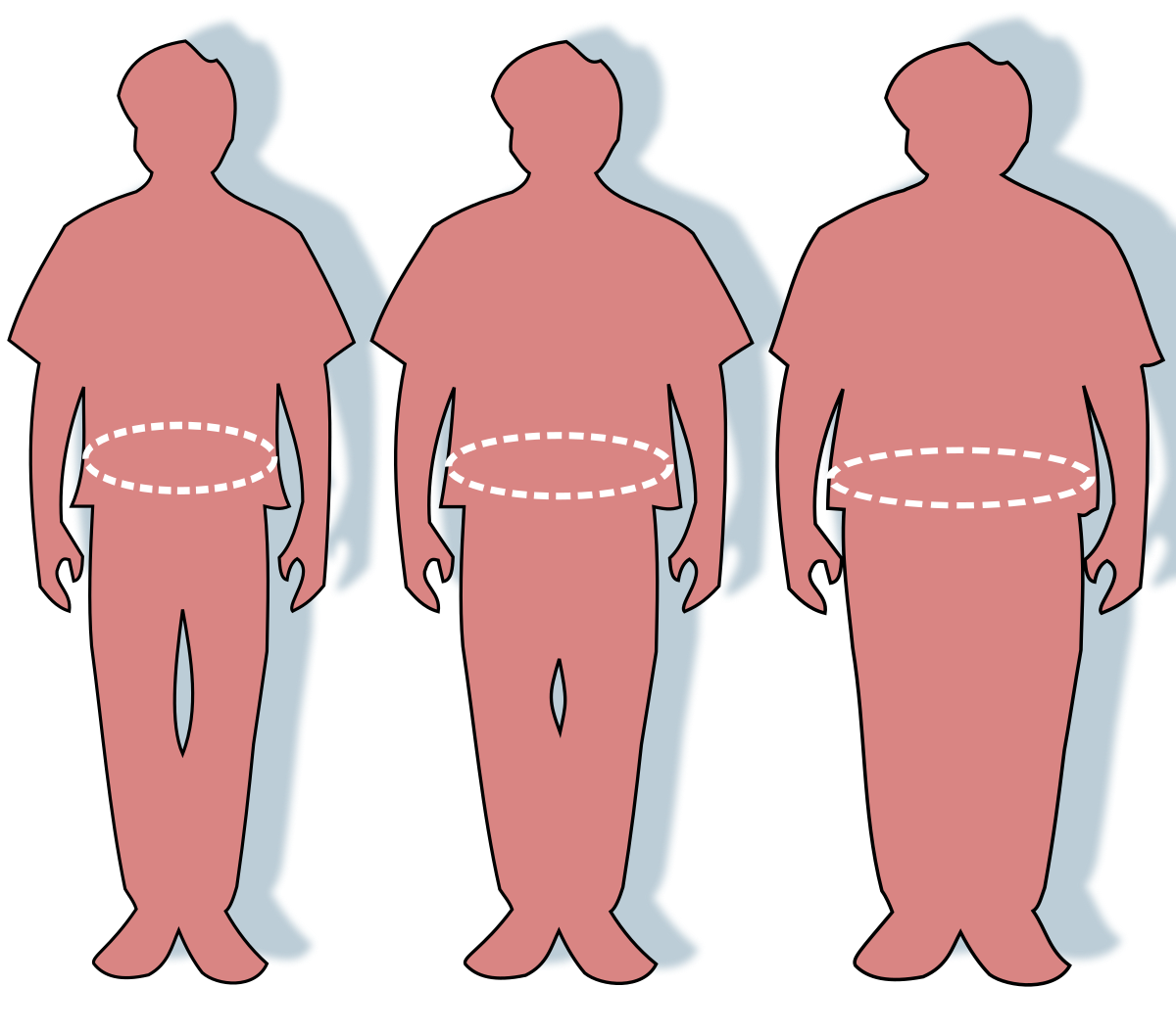 Clipart walking metabolic. Obesity wikipedia