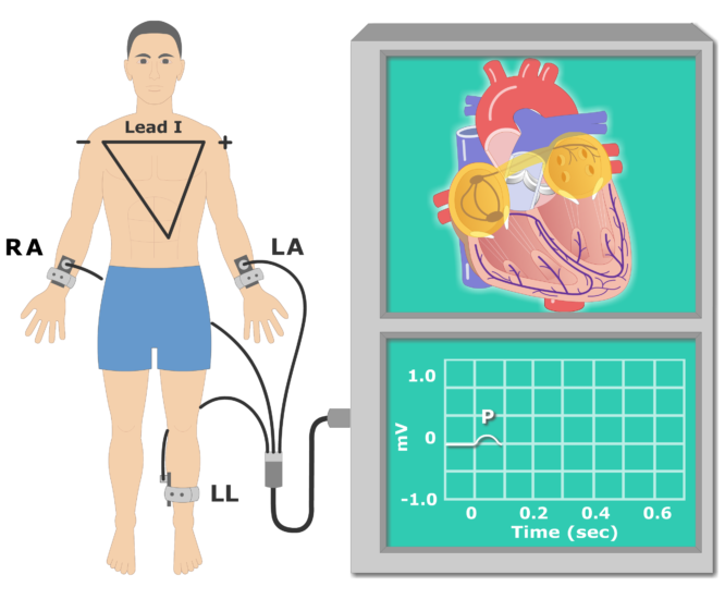 The electrocardiogram ekg or. Clipart wave animated