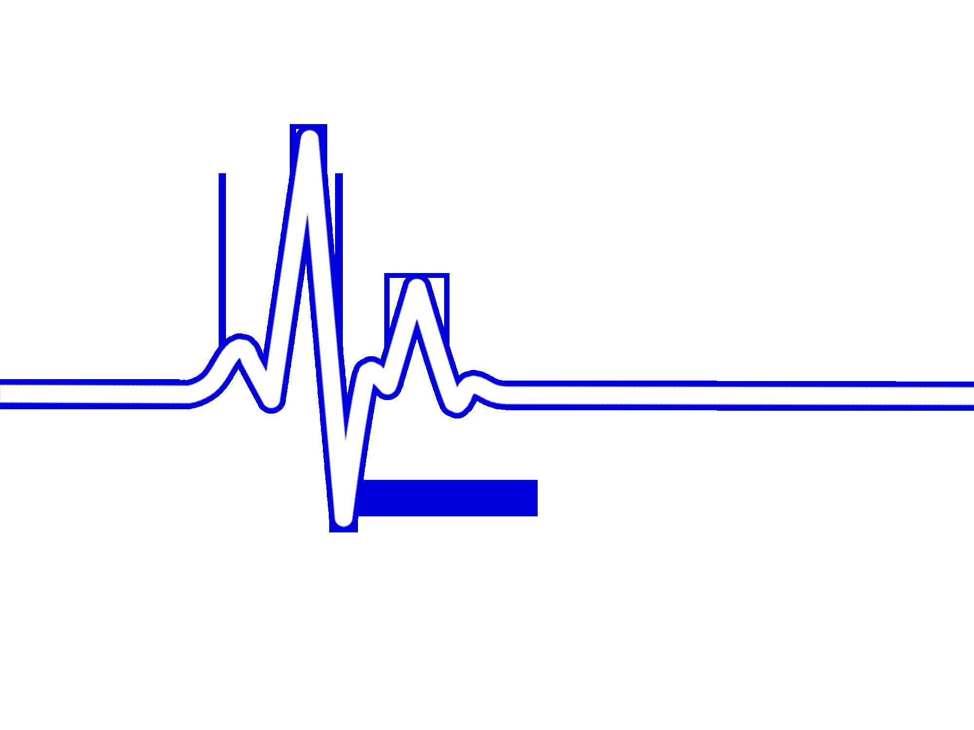 Rate bpm ecg ekg. Heartbeat clipart heart monitor line