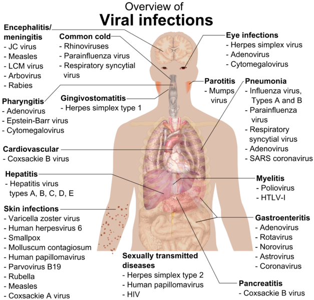 Kenya major infectious diseases. Cold clipart respiratory infection