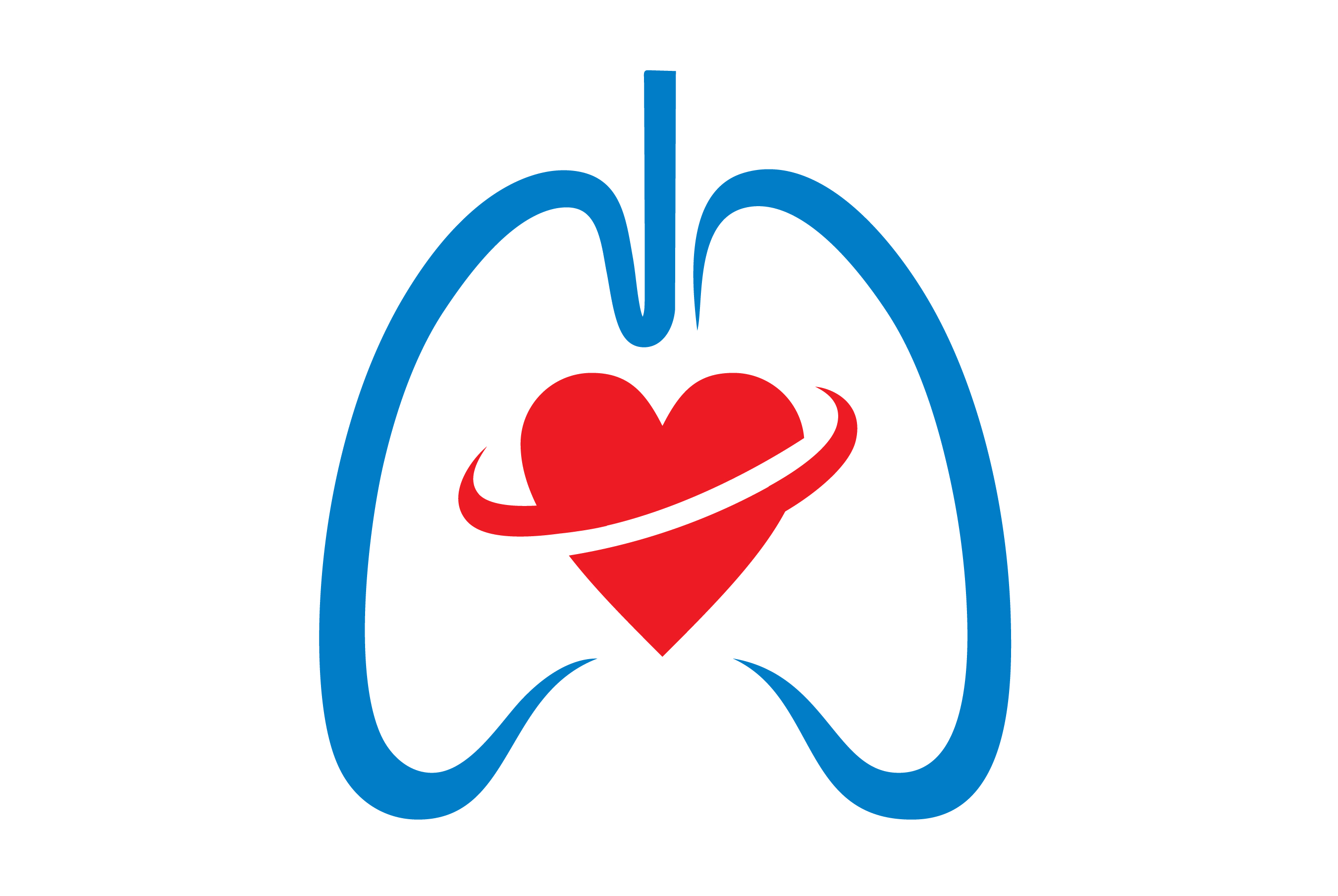 Lungs clipart chronic bronchitis. Pleural fluid drainage frequency