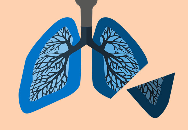 Cough clipart lung cancer. Life after lobectomy steps