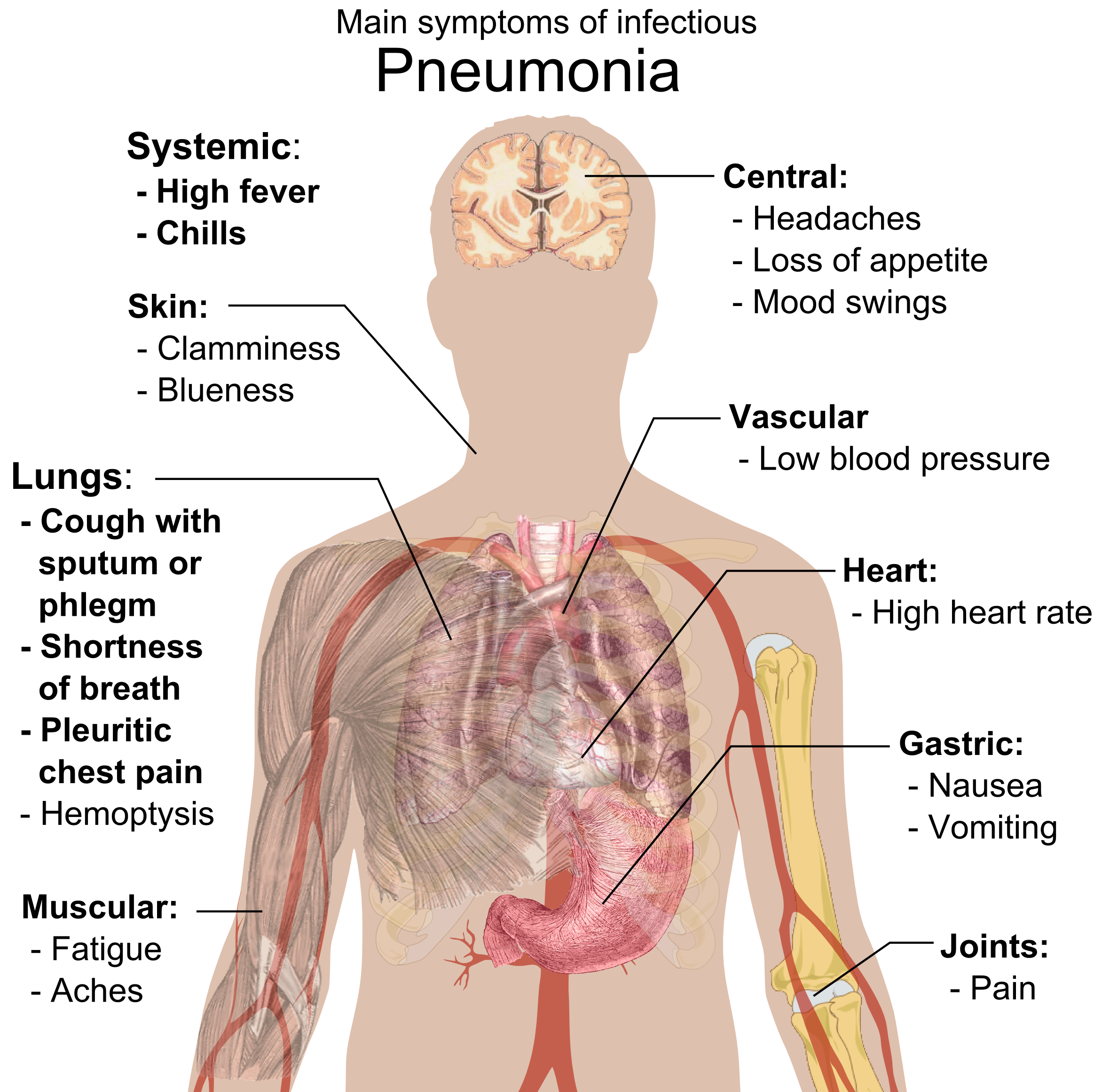 lungs clipart pneumonia