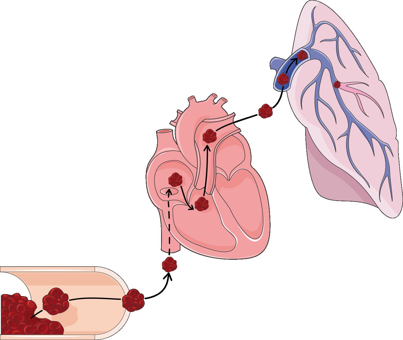 Lungs lobes servier medical. Cough clipart poumons