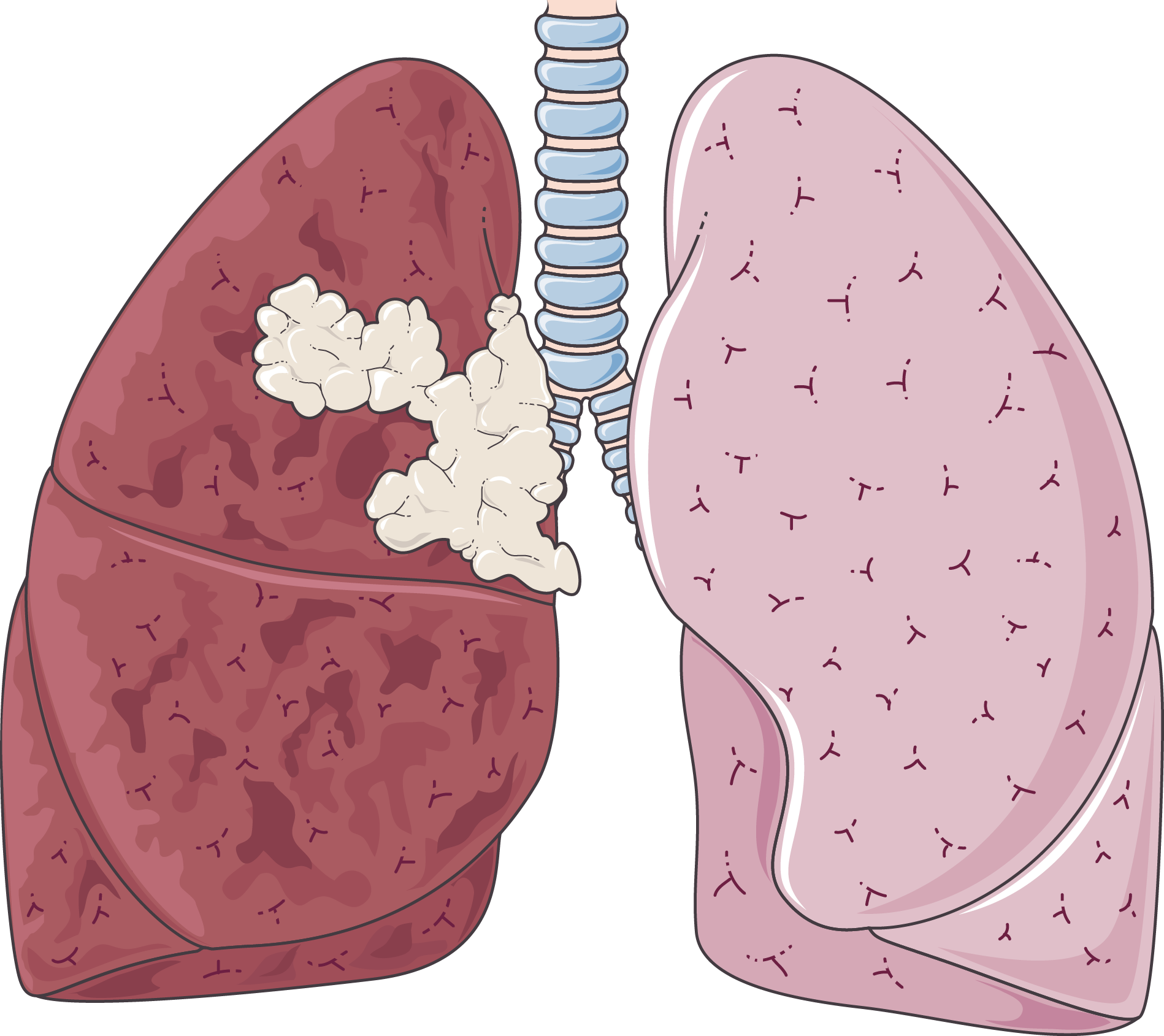 Lungs clipart chronic bronchitis. Oncology archives servier medical