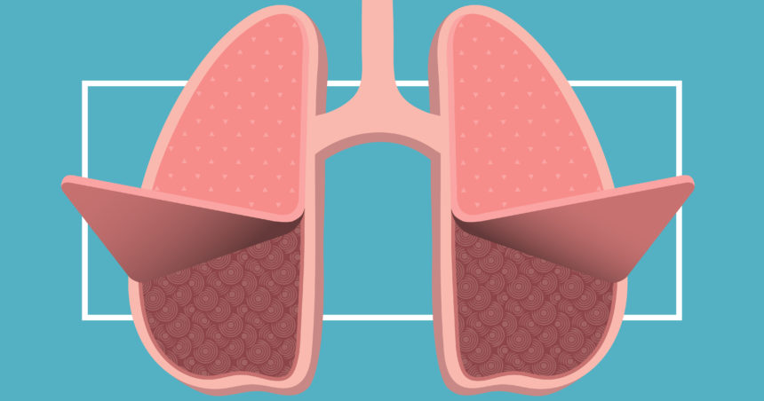 Lung disease what you. Cough clipart rapid breathing