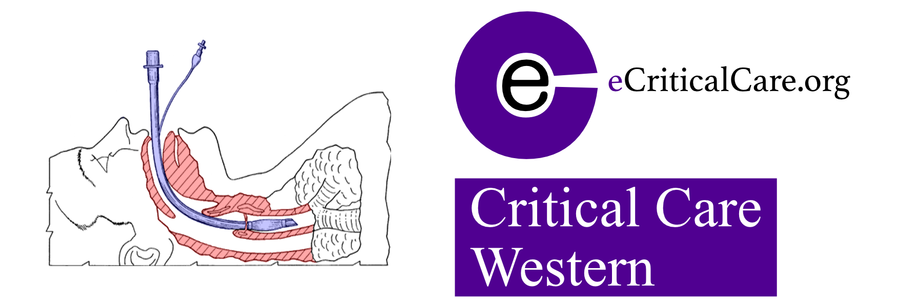 Critical care western extubation. Patient clipart icu clipart