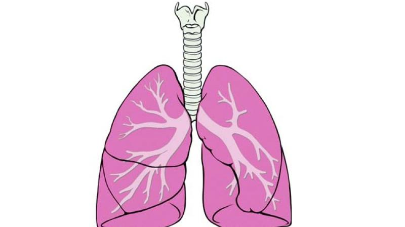 Early detection can offer. Lungs clipart bronchitis